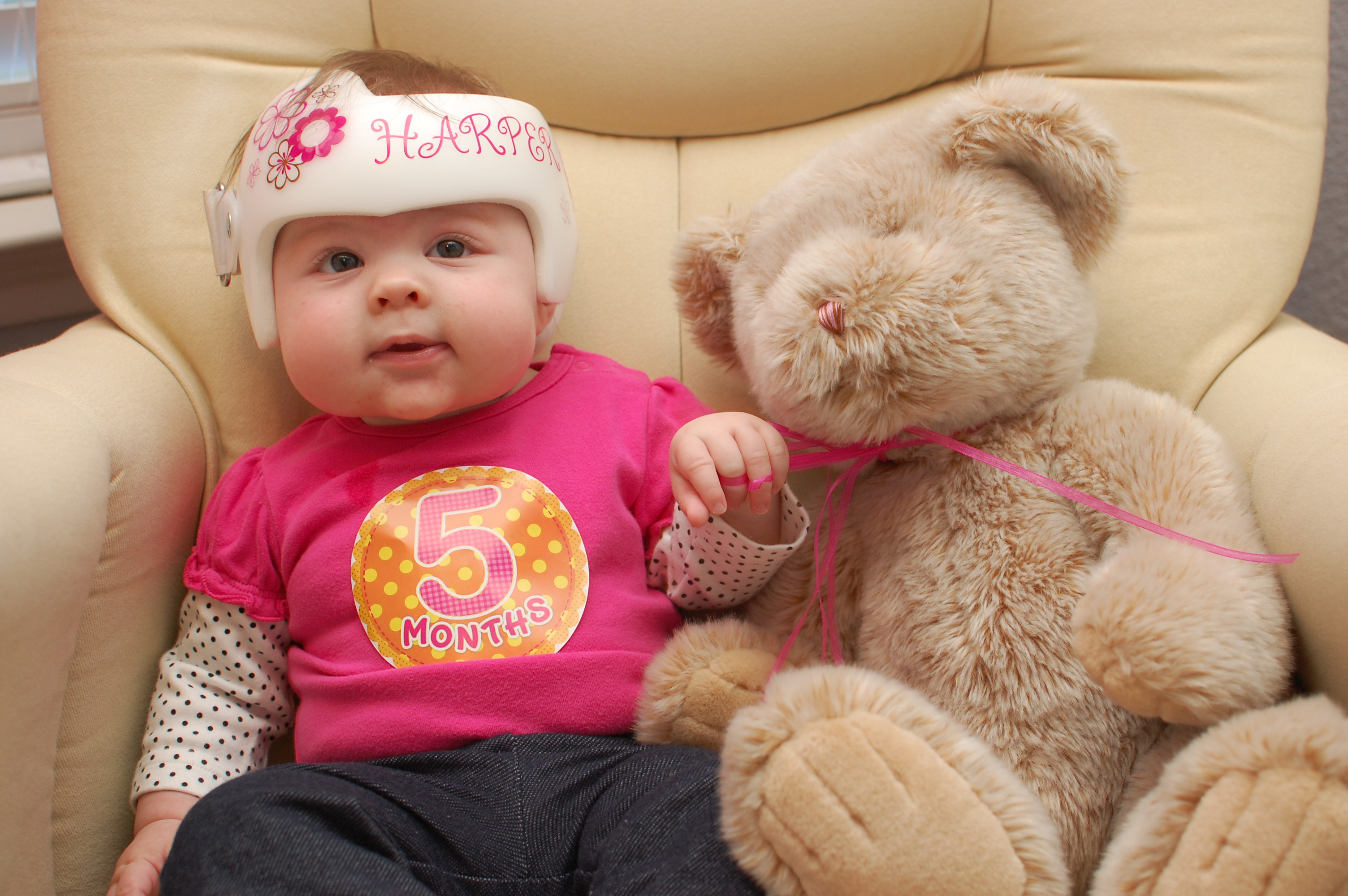 Plagiocephaly The Blundell S